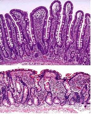 Leaky Gut Demystified  True Carnivores